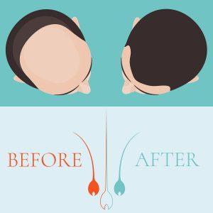 Haartransplantation Köln Beethoven Klinik