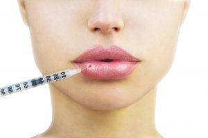 Lippenunterspritzung