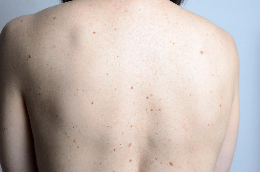 Wie erkenne ich Hautkrebs? Pigmentflecken regelmäßig untersuchen
