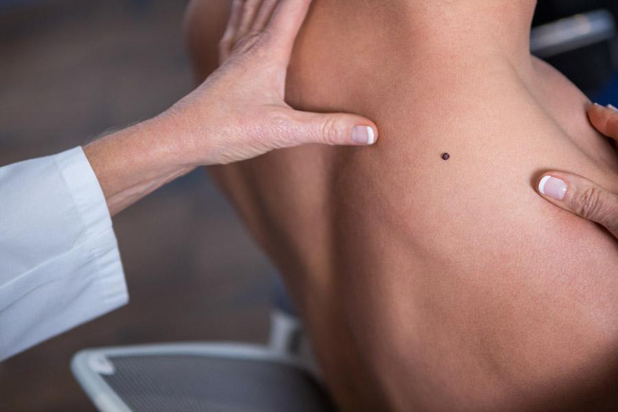 Hautkrebsvorsorge in Köln - Muttermalkontrolle & Muttermalentfernung vom Dermatologen