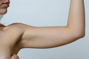 Haut straffen ohne OP - Oberarme straffen