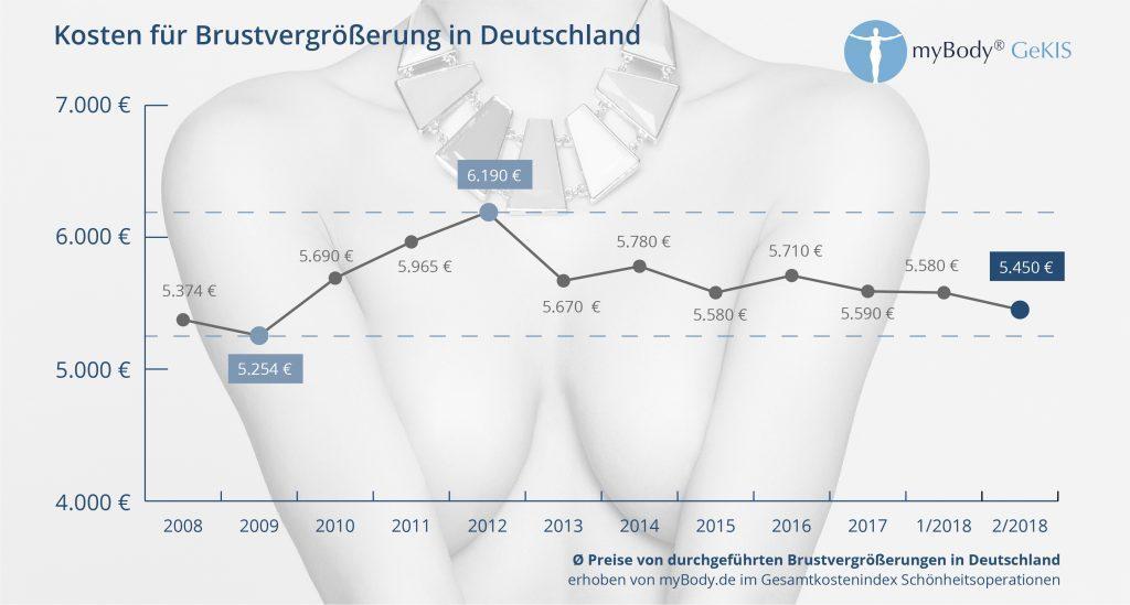 Kosten für Brustvergrößerung - GEKIS-INdex