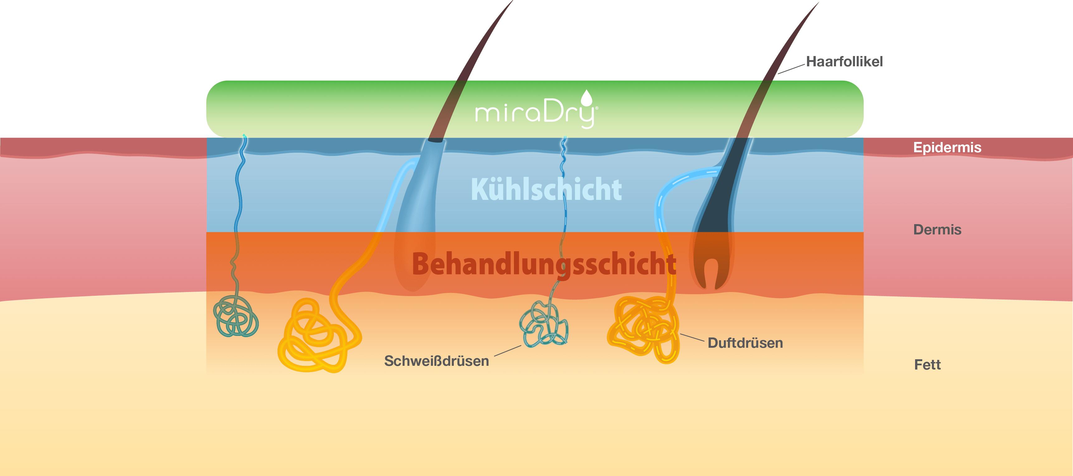 miraDry Anti-Schweiß-Behandlung